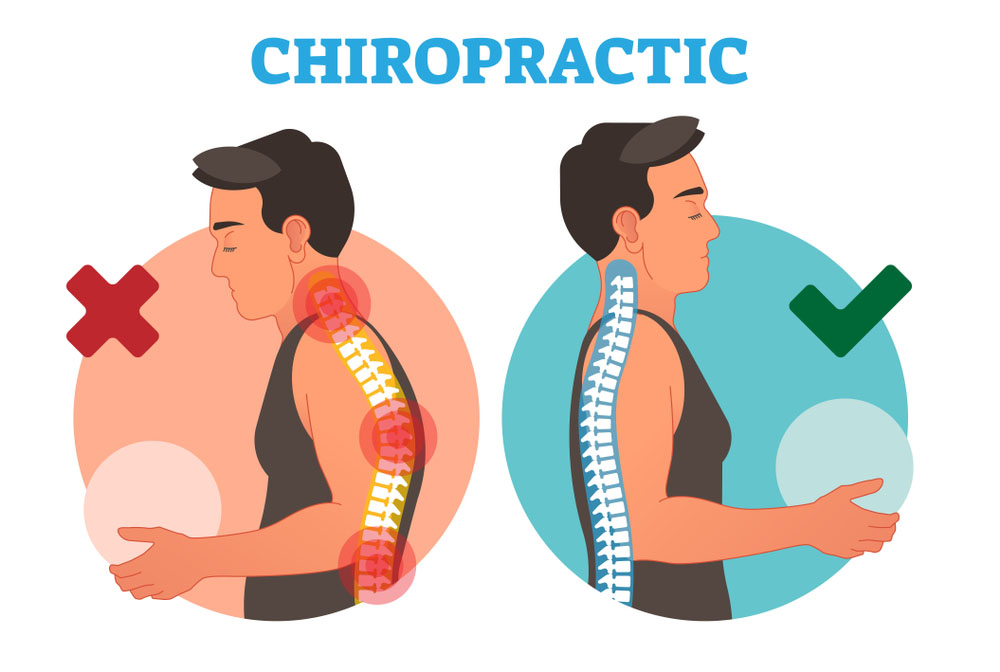 Chiropractic Treatment Pensacola